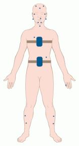 Elektrodenanordnung